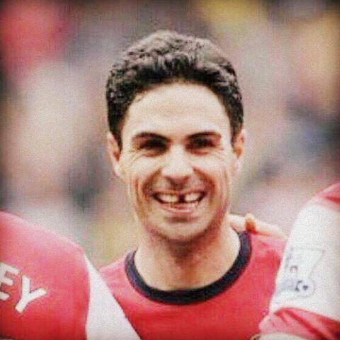 Arsenal: Quand Arteta perd une dent en plein match