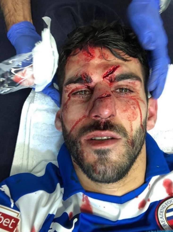 L'ex Rennais Nelson Oliveira défiguré après s'être fait marcher dessus par Tyrone Mings