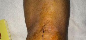 Real Madrid : Jesé poste une photo sur Twitter de sa cicatrice après l'opération