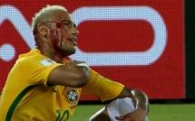 Yasmani Duk ne compte pas d'excuser suite au coup de coude infligé à Neymar